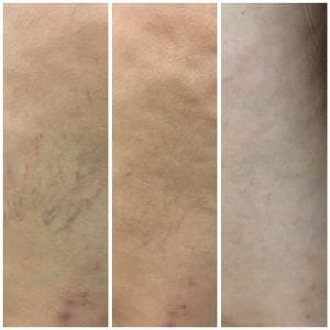 sclerotherapy treatment at Beauty Boost