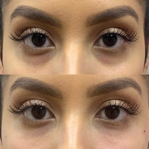 before and after under eye fillers