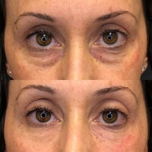 before and after under eye fillers treatment