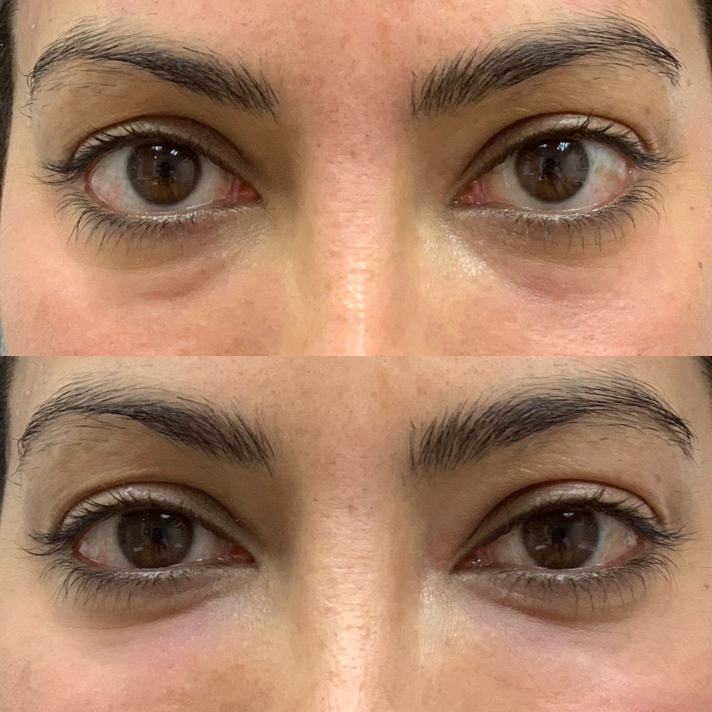 PRP Facial Before And After