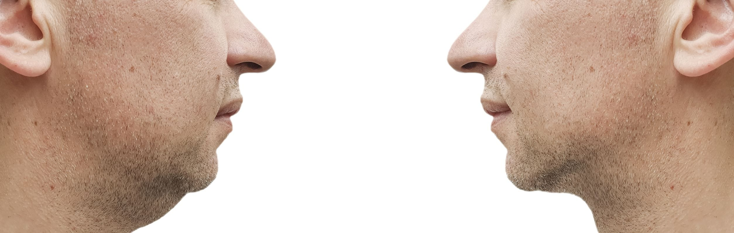Chin Up! This is the Year to Melt Your Chin and Body Fat With Kybella