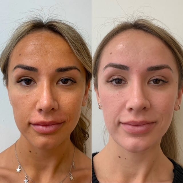 zo 3 step peel before and after